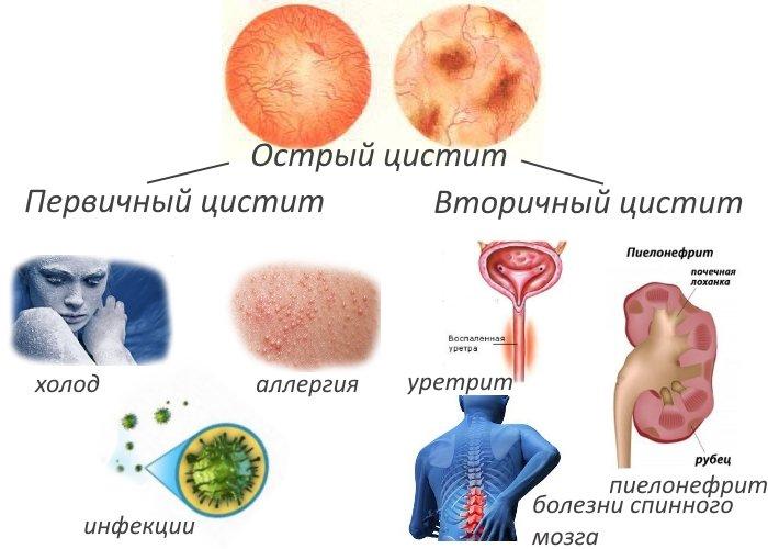 Цистит при беременности: лечение препаратами