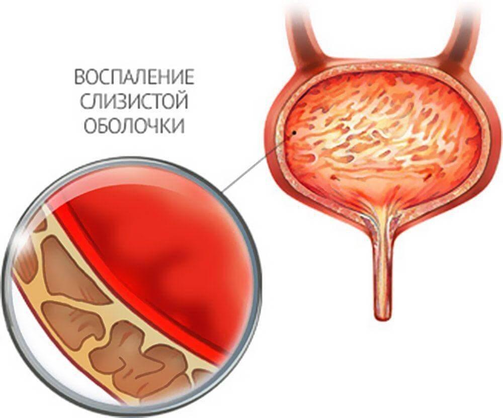 Грибковый простатит схема лечения