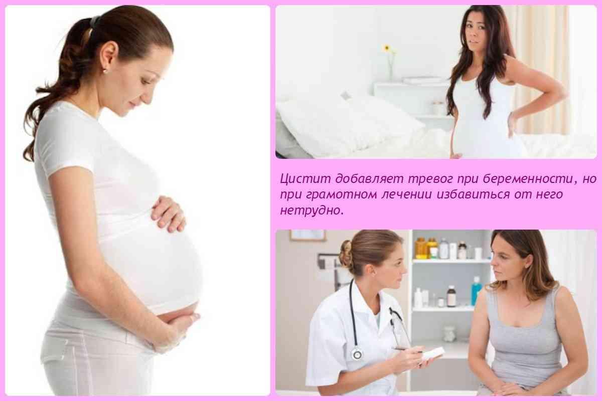Беременность цистит как лечить