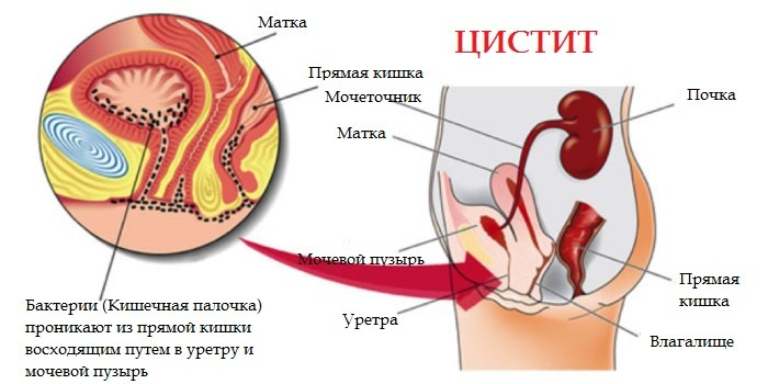 Антибиотики для лечения цистита