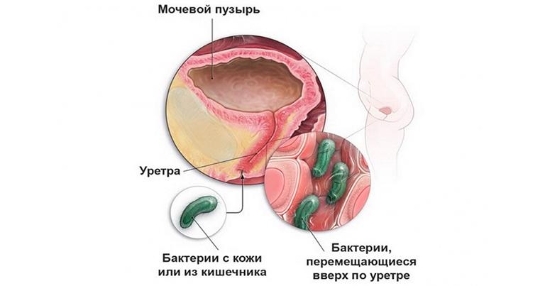 Бактериальный неспецифический уретрит у мужчин