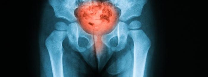 Рентген мочевой пузырь