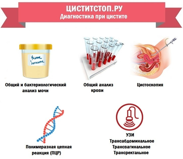 ЦиститСтоп.ру — диагностика при цистите