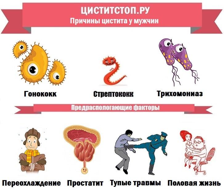 ЦиститСтоп.ру — причины цистита у мужчин