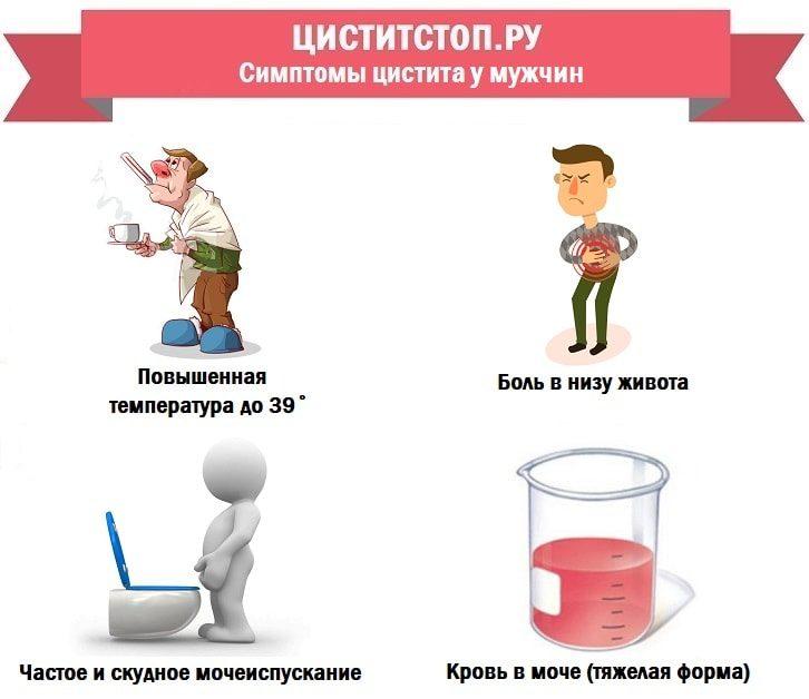ЦиститСтоп.ру — симптомы цистита у мужчин-min