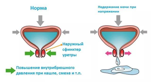 Менопауза и цистит мочевой пузырь при климаксе у женщин