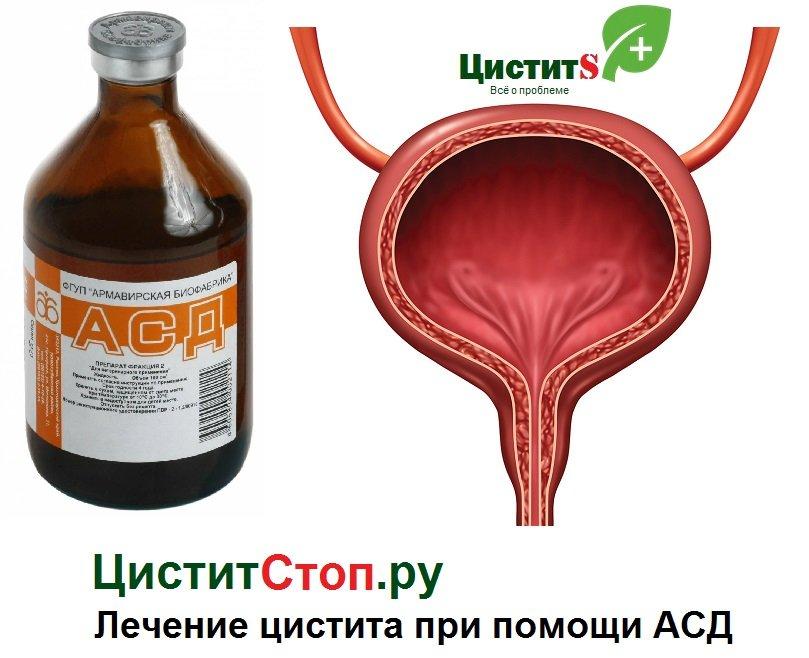 АСД при цистите у женщин
