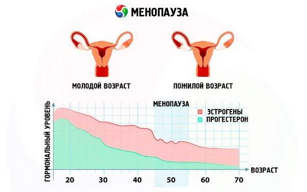 Проявление цистита при менопаузе