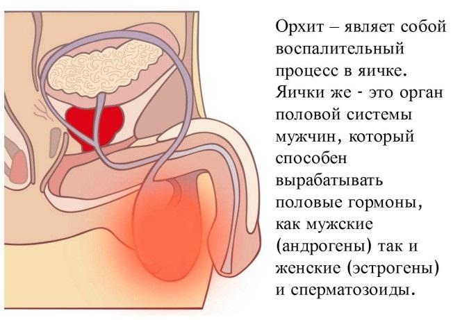 Орхит