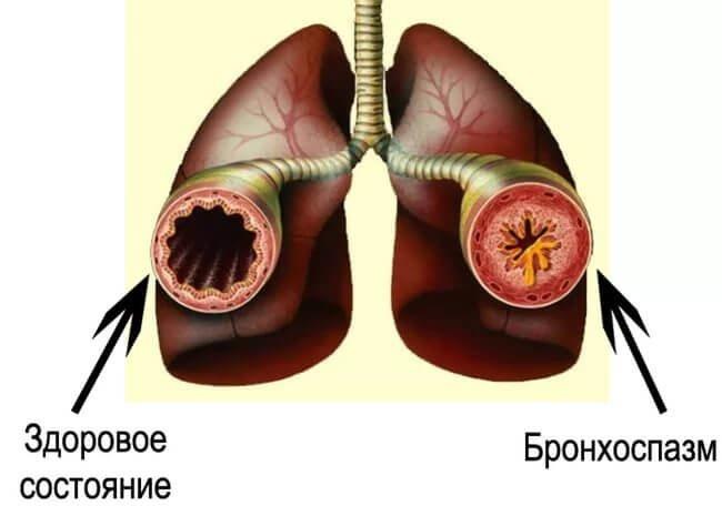 Бронхоспазм