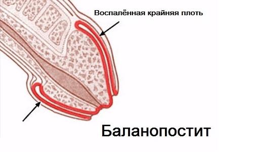 Баланопостит