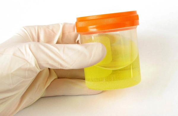 Клебсиелла пневмонии в моче
