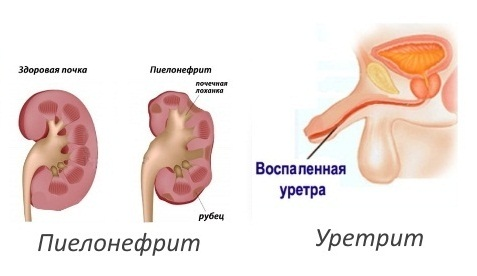 Пиелонефрит, уретрит