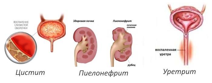 Цистит, пиелонефрит, уретрит