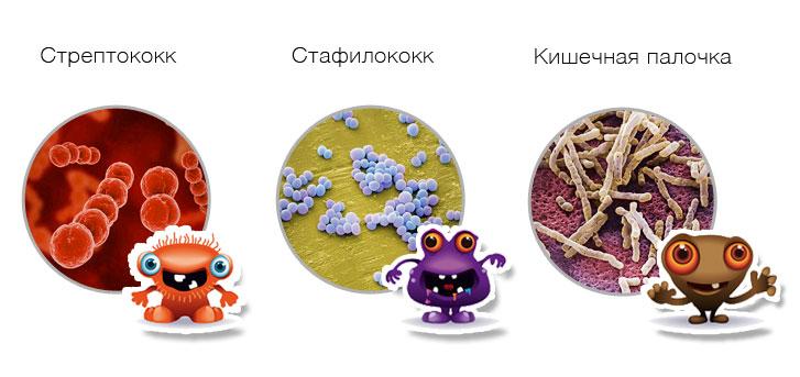 Стрептококк, стафилококк, кишечная палочка
