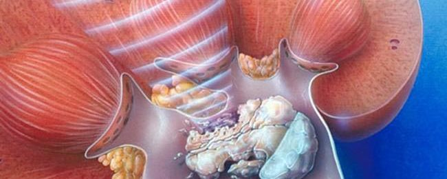 Калькулезный пиелонефрит