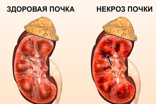 Некротический пиелонефрит