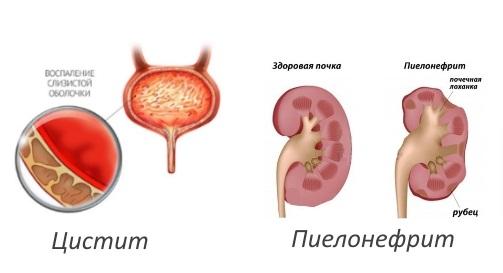 Пиелонефрит что это такое симптомы первые признаки лечение и последствия