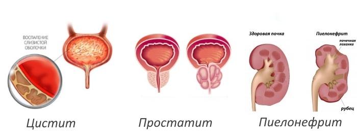 Цистит у женщин вызванный простатитом у мужчин как проявляется простатита у мужчин симптомы