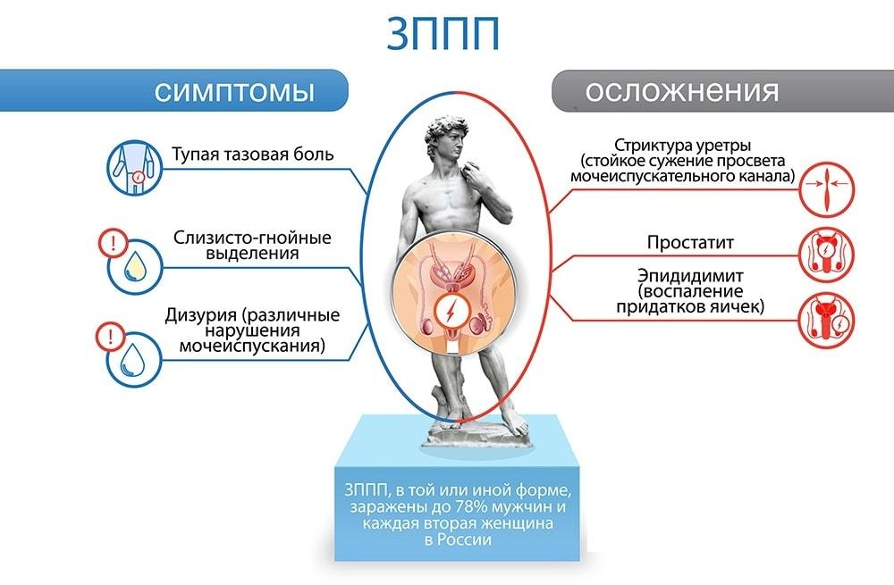 признаки и осложнения ЗППП у мужчин