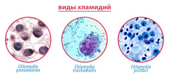 Виды хламидий