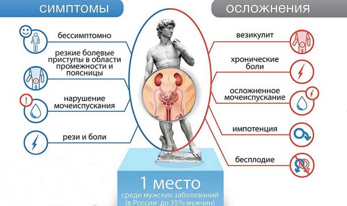 что такое простатита у мужчин симптомы и лечение